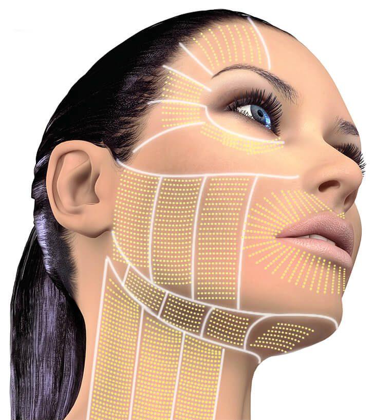 oblique view face neck perioral1 hautarztpraxis kassel. Black Bedroom Furniture Sets. Home Design Ideas