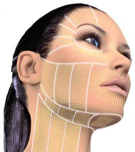 Oblique-View-Face-Neck-Perioral1